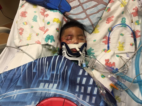 Two-year-old Eduardo Lopez Martinez is in critical condition at the University of Kansas Hospital following a hit-and-run accident Nov. 24.  Police are asking for the public's help in finding out information about the accident. (Photo from KU Hospital)